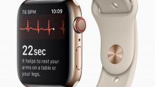 Apple Watch ЭКГ следующий шаг в расширении функционала часов